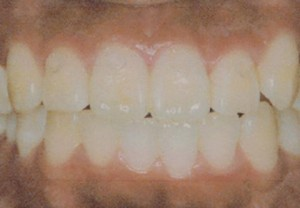 orthodontic_img012